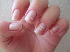 Какво означават белите петънца по ноктите?